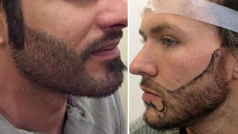 Mientras tanto, el implante de barba está de moda entre los peruanos