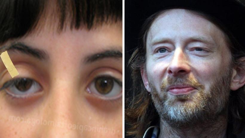 Fans de Thom Yorke comienzan a pegarse el párpado con masking para el Ceremonia