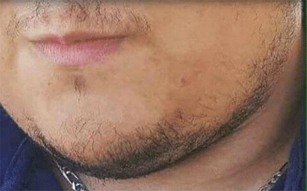 barba 3 pelos